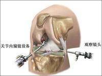 前十字韧带断裂重建手术自体韧带、异体韧带、人工韧带的区别-前叉之家