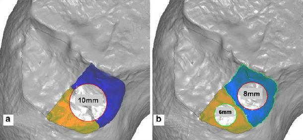 前交叉韧带重建—单束和双束的比较