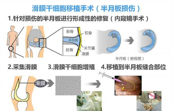 谁看谁想赞!半月板再生手术,日本已开始临床实验