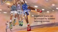 研究:澳青少年高速运动致膝关节重建手术率骤增-前叉之家