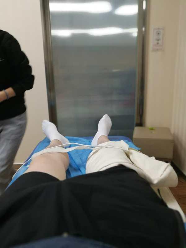 双膝ACL重建:康复过程是一个反复挣扎的阶段,需要在质疑和坚持中不断的突破自己