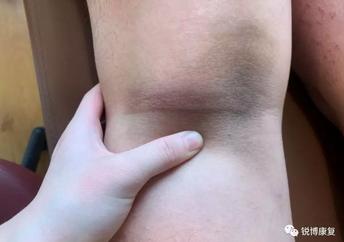 前交叉韧带手术增生